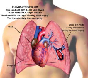 Pulmonary Embolism 3